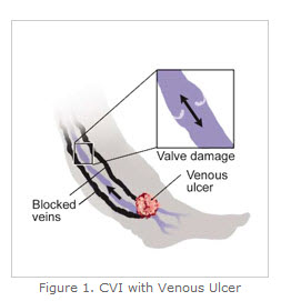 cvi with venus ulcer