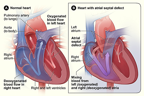 atrial_septal_defect