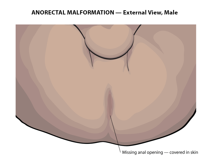 Small ball on male anus