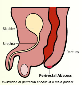 perirectal abscess