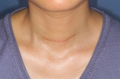 Endocrine Scar From Wikepedia