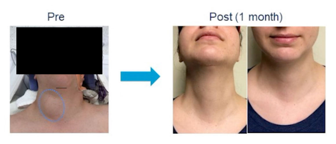 Department Of Surgery Scarless Thyroid And Parathyroidectomy