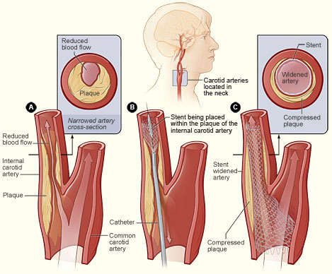 Department of Surgery - Carotid Artery Disease