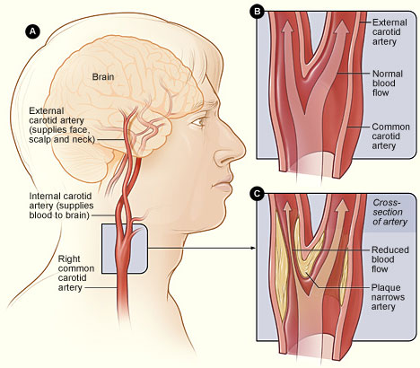 Carotid Arteries Graphic