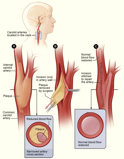 Carotid endarterectomy (aftercare instructions) what you need to.