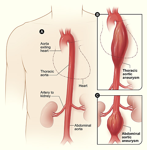 Department Of Surgery Abdominal Aortic Aneurysm
