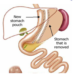 Department of Surgery - Laparoscopic Sleeve Gastrectomy