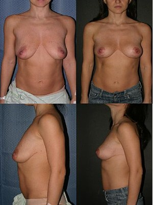 Mastopexy_Before_&_After