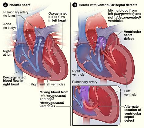 Ventricular Septal Defect Treatment History Ventricular Septal Defect