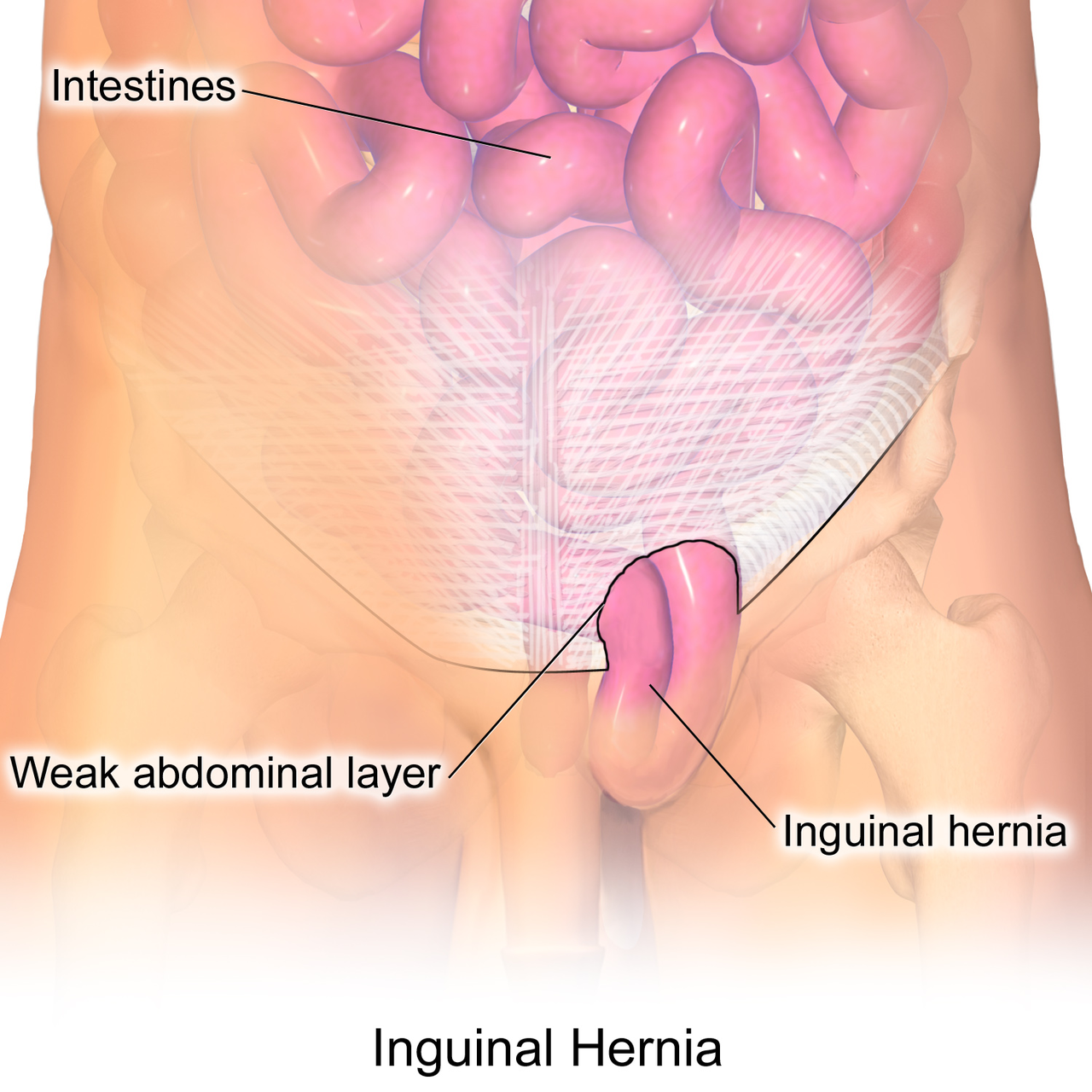 Department of Surgery - Inguinal Hernia