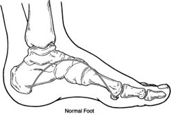 Department of Surgery - Charcot Foot