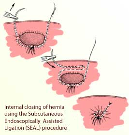 Department of Surgery - Inguinal Hernia (Pediatric)