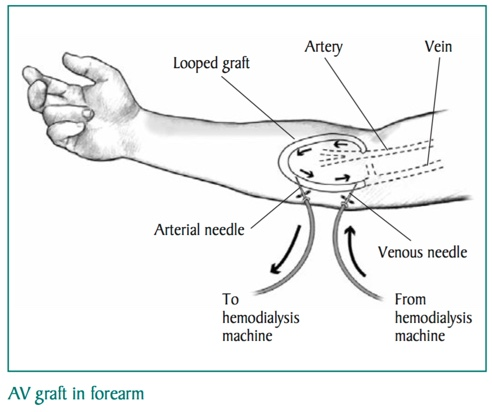 AV Graft In Forearm