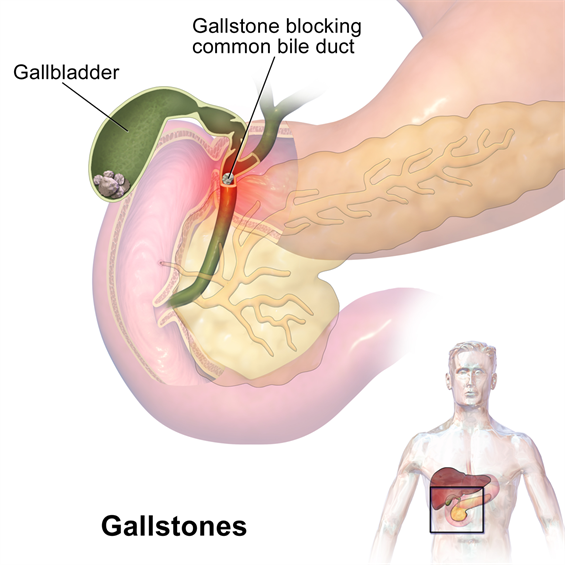 Department Of Surgery Gallstones